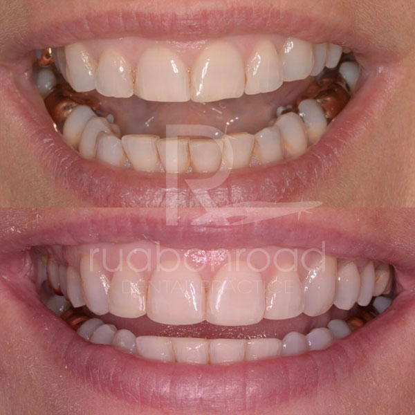 Recountoured teeth before and after photo