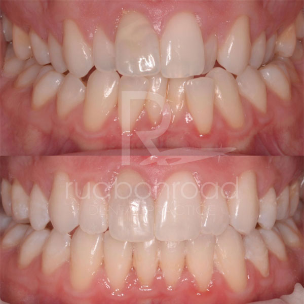 Orthodontic treatments before and after photo