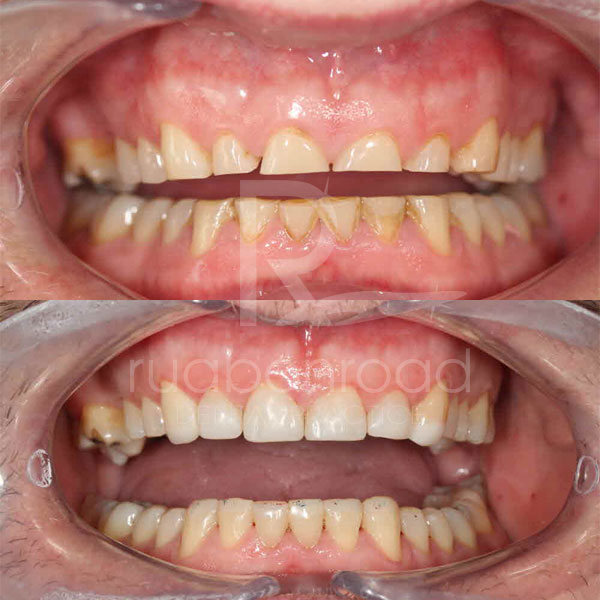 Composite fillings before and after photo