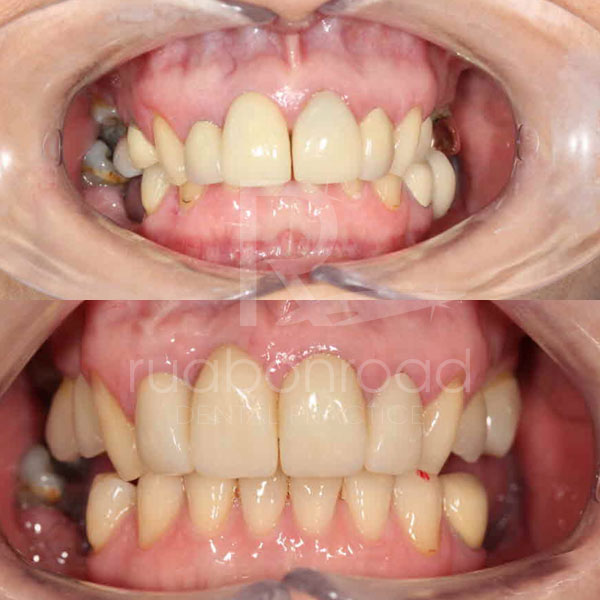 Teeth surgery and crowns before and after photo