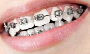 Advice for Orthodontic Emergencies during Covid 19