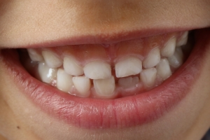 The Truth about Baby Teeth.
